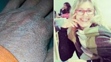 Nurse's shocking 'zombie hands' after treating Covid patients