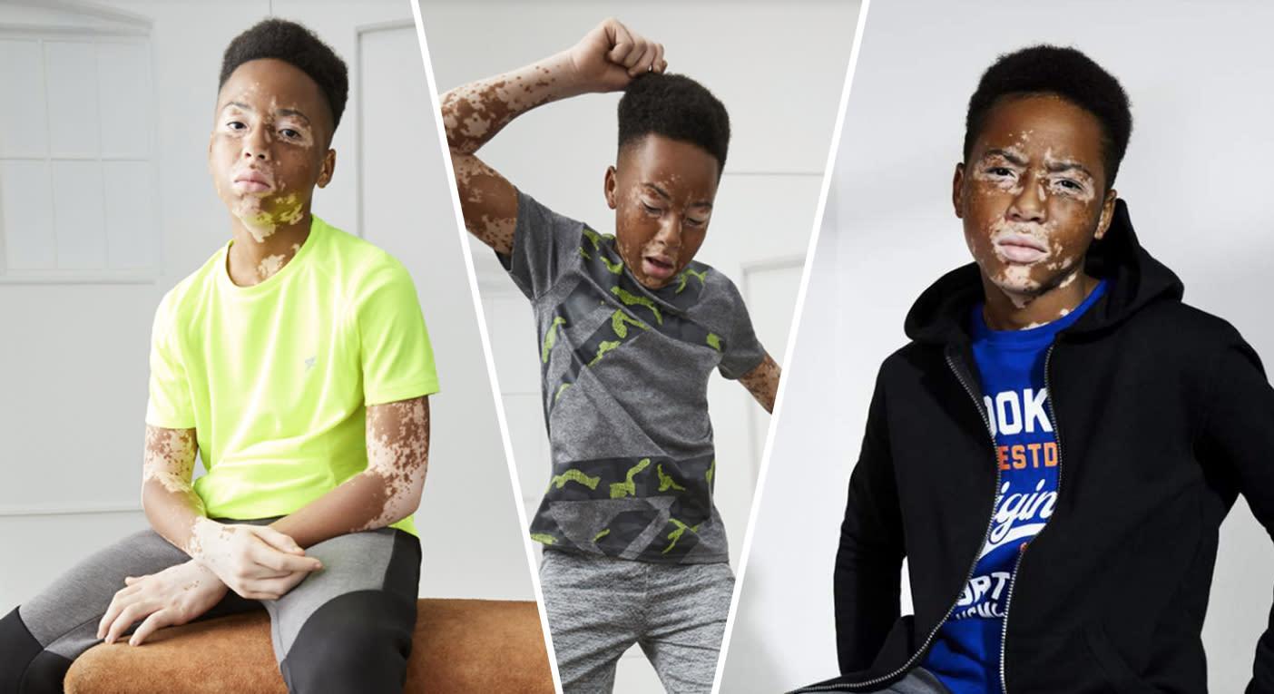 Primark S New Campaign Features A Model With Vitiligo