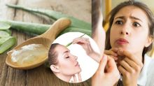 7 Best Home Remedies To Get Rid Pimples And Acne Naturally, Also Remove Acne Scars