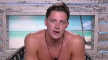 Love Island fans express increasing concern over Alex's sunburn