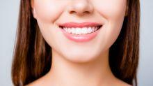 Se limer les dents, la nouvelle tendance dangereuse des réseaux sociaux