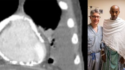Ontario man's heart excavated from calcium shell