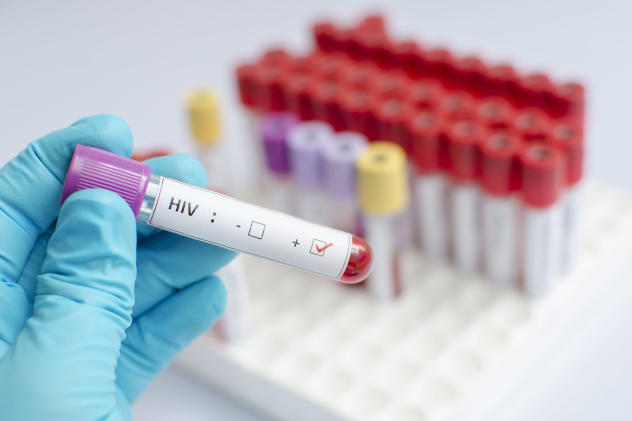 Stanford's HIV and cancer test detects their presence earlier
