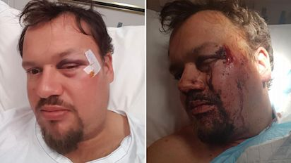 Man's plea for help after horrific beating