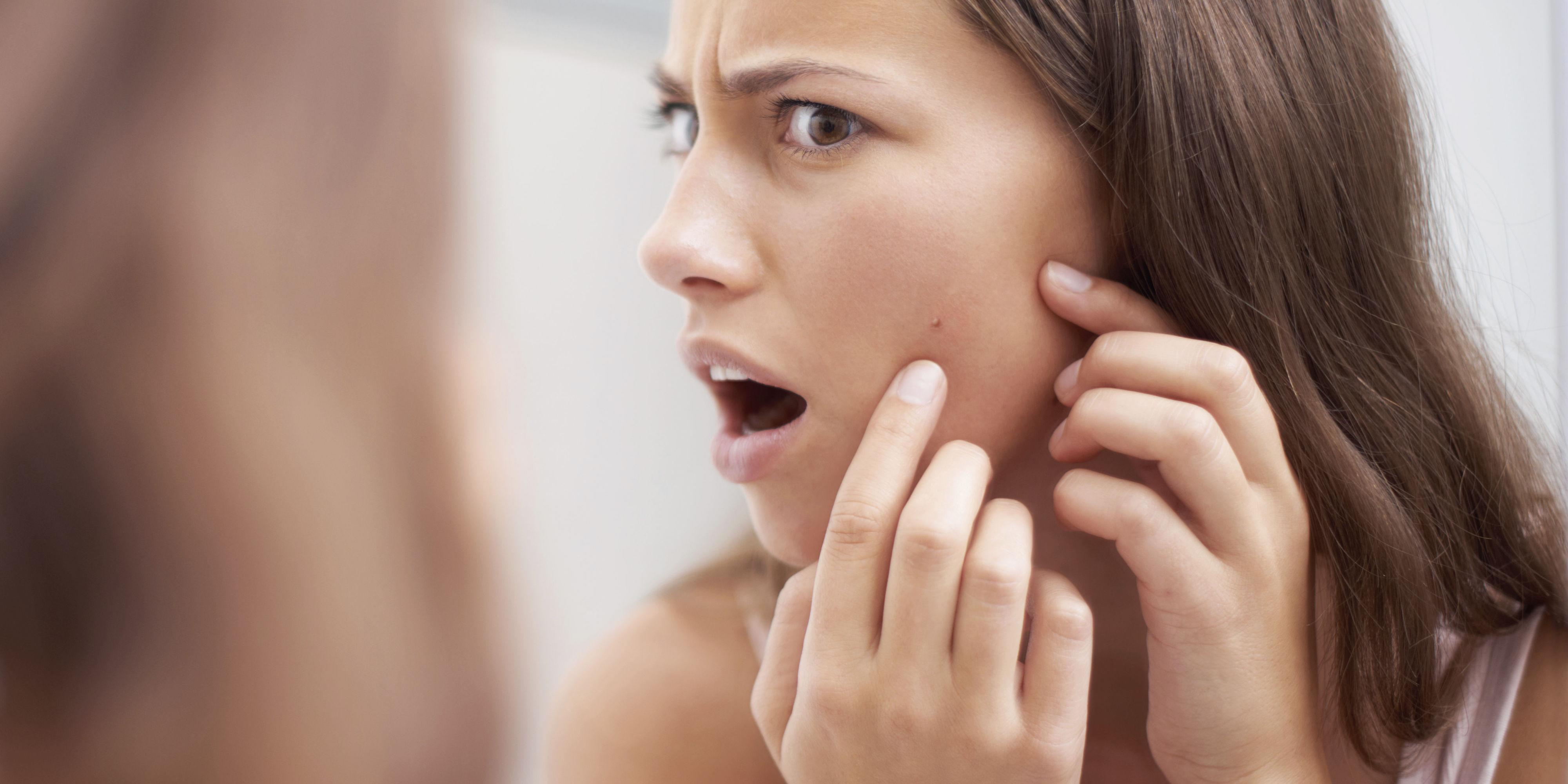 pictures-of-facial-skin-problems