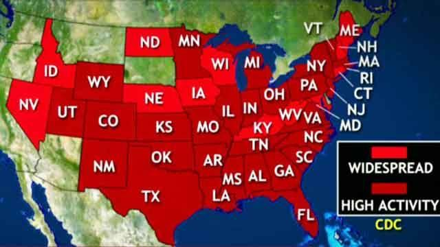 Flu outbreak labeled classic epidemic; 41 states affected
