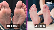 We tried the disgustingly satisfying foot mask that will peel your dead skin off in sheets