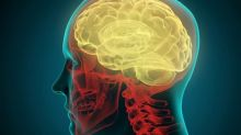 Breakthrough in multiple sclerosis research as scientists discover possible cause of the disease