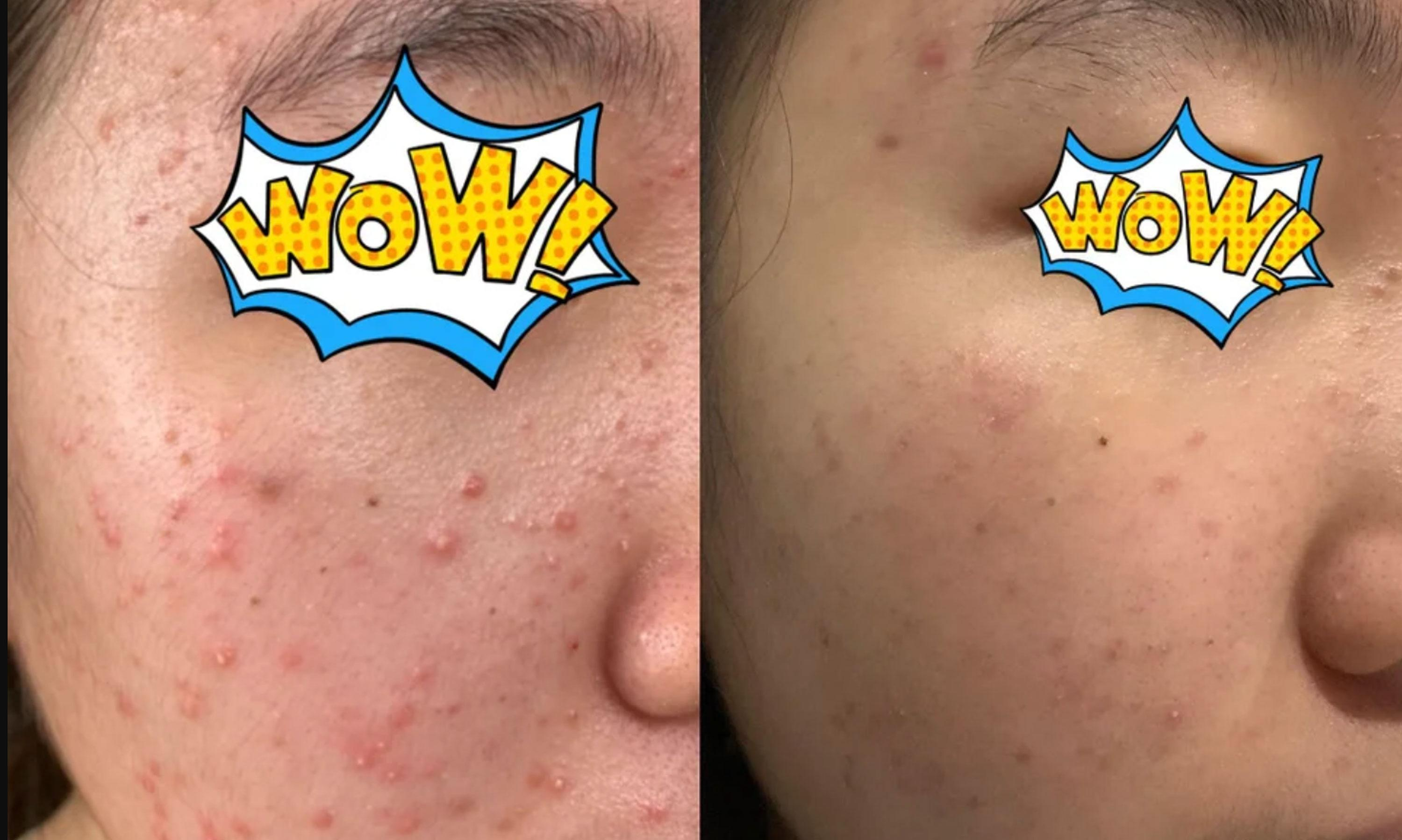 A Redditor Says Selsun Blue Dandruff Shampoo Helped Clear Up Her Fungal Acne