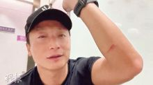 Alex Fong injures eyes while practicing for charity swim