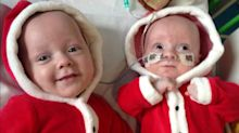 One identical twin born almost double the size of the other due to rare condition