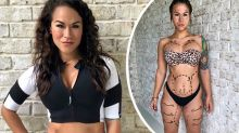 Social media star opens up about plastic surgery regrets