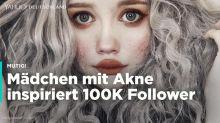 Mutiges Mädchen: Hailey sammelt mit ihrer Akne über 100.000 Follower