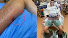 Horrific photos reveal man's excruciating stingray injury