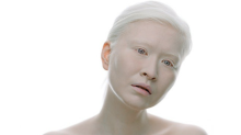 World's first albino model talks smashing beauty standards: 'People want you to feel different'