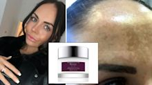 Woman who spent £4,000 trying to fix her sun damage finds a £49.99 miracle cream cure