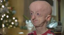How Devin Scullion, Hamilton man with rare rapid aging disorder, is being remembered