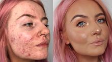This foundation is going viral after cystic acne sufferer shares her 'insane' before-and-after pics