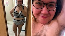 Woman with excess body hair from PCOS ditches the razor and finds her body confidence