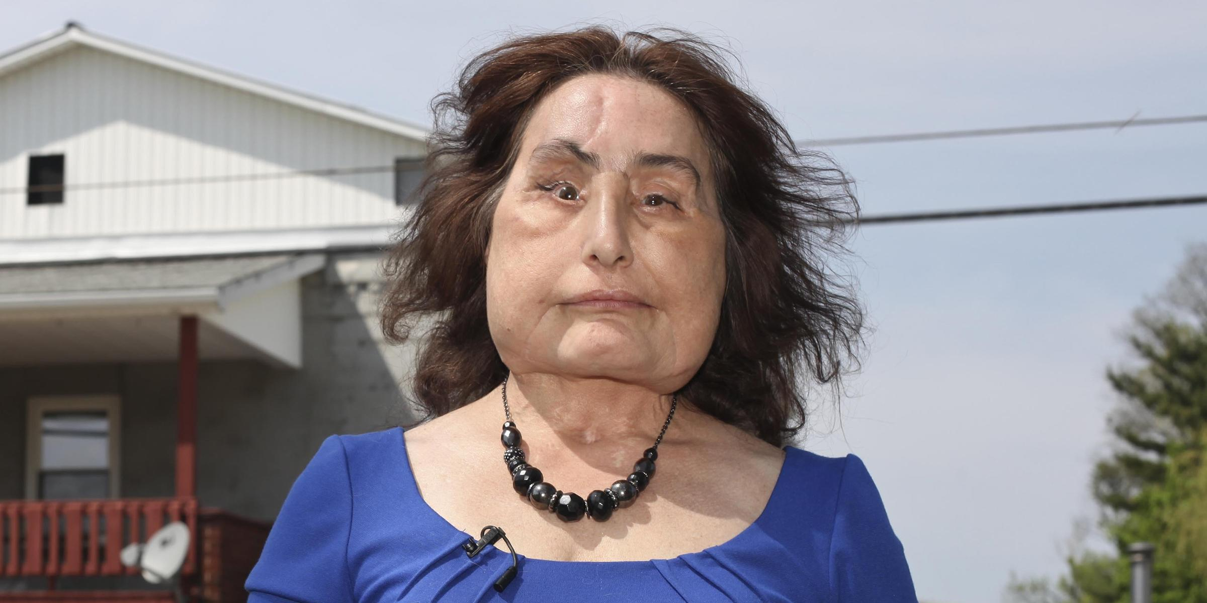 OH  woman who received first USA  face transplant dead at 57
