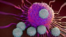 Pfizer hat große Pläne bei der Behandlung von Lungenkrebs