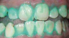 Controlar la placa dental podría ayudarte a prevenir un infarto