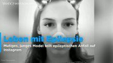 Model teilt epileptischen Anfall auf Instagram