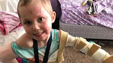 Mother warns of candle-burning danger after daughter, 6, has to have fingers and toes amputated