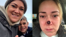 'Harmless' spot on mum's nose turned out to be skin cancer