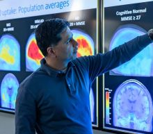 Biogen's Alzheimer's Drug Opens Up a New Market. These Stocks Could Benefit if More Approvals Come.