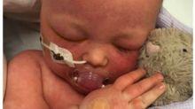 """Mutter teilt herzzerreißende Fotos: """"Lasst eure Kinder impfen"""""""