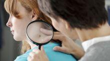 Cómo eliminar las verrugas del cuello de manera segura con remedios naturales
