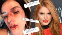 Bella Thorne accused of 'glamorizing being physically abused' with bloody Halloween makeup