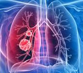 Roche receives FDA approval for the cobas EGFR Mutation Test v2 as the first companion diagnostic test for expanded EGFR TKI therapies in patients with non-small cell lung cancer