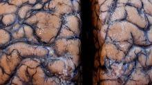 Un grupo de científicos advierte de una potencial ola de lesiones cerebrales relacionadas a la COVID-19