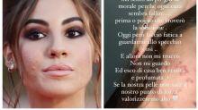 """Giulia De Lellis: """"Faccio fatica a guardarmi allo specchio. Ogni cura contro l'acne sembra fallire"""""""
