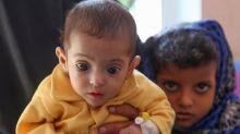 La guerre au Yémen a tué 85.000 enfants