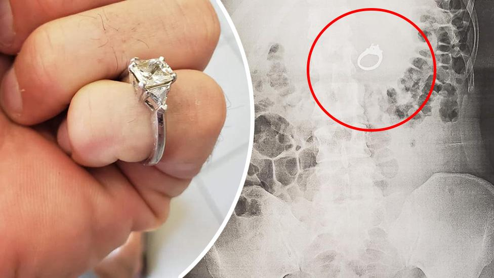 'I could feel it in my guts': Bride-to-be swallows engagement ring while asleep, has it surgically removed