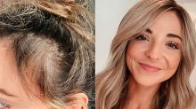 'I'm all about sharing the good, the bald and the ugly': Blogger reveals her private struggle with hair loss