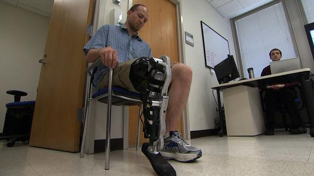 Amputee controls bionic leg with brainwaves