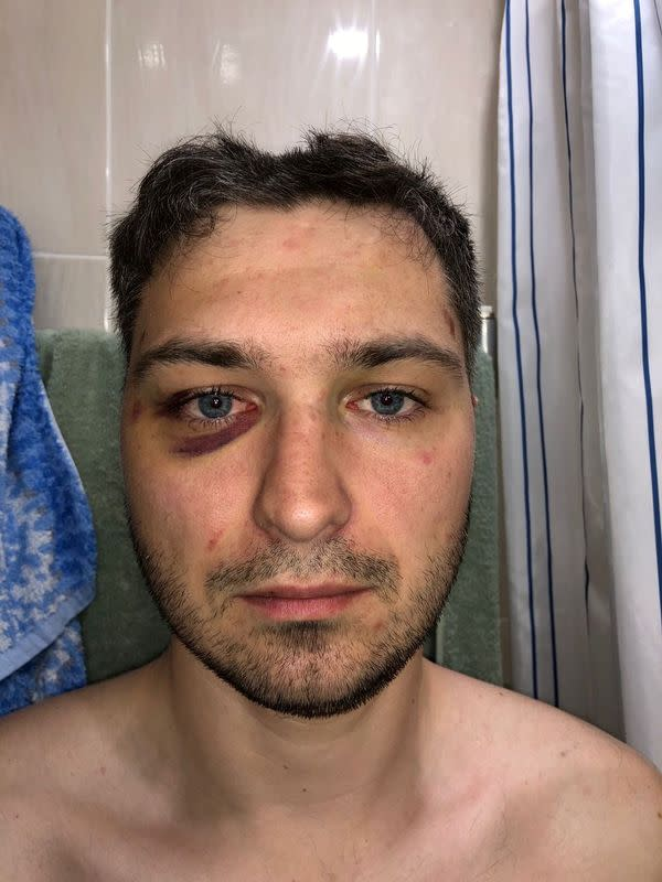 Belarusian software engineer Max Korolevsky demonstrates bruises on his body in Minsk