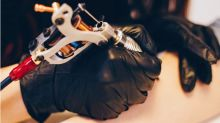 Soliton Tattoo Removal Device: SOLY Stock Skyrockets on FDA Approval