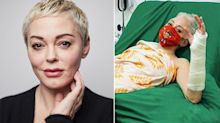 Rose McGowan broke her arm while reading US election results