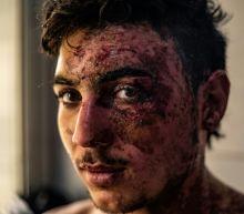 In Syria hospital, Kurdish fighters determined despite burns