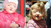 Teachers ban girl, 2, from nursery because her deformity 'scares her classmates'