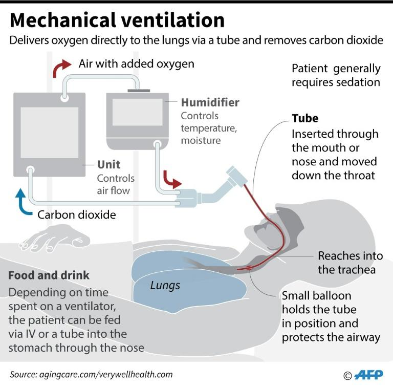 Schematic showing the components of a mechanical ventilator machine, highlighting the placement of a breathing tube in the trachea of a patient. (AFP Photo/John SAEKI)