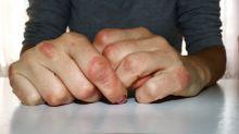 La artritis que se puede esconder tras una inflamación en tus dedos