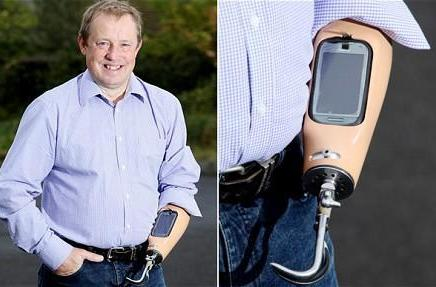 British man's prosthetic arm doubles as Nokia C7 dock
