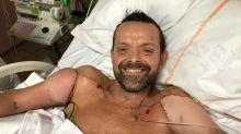 El primer hombre en someterse a un trasplante de brazos 'ahora puede flexionar el bíceps de su donante'