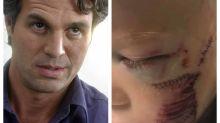 Mark Ruffalo, o Hulk, manda mensagem para garoto que levou 90 pontos no rosto após salvar irmã de ataque canino